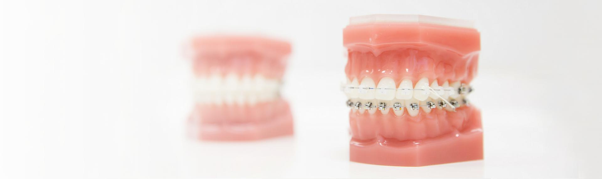 Estetyczny aparat ortodontyczny