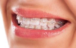 Estetyczny (kryształowy) aparat ortodontyczny